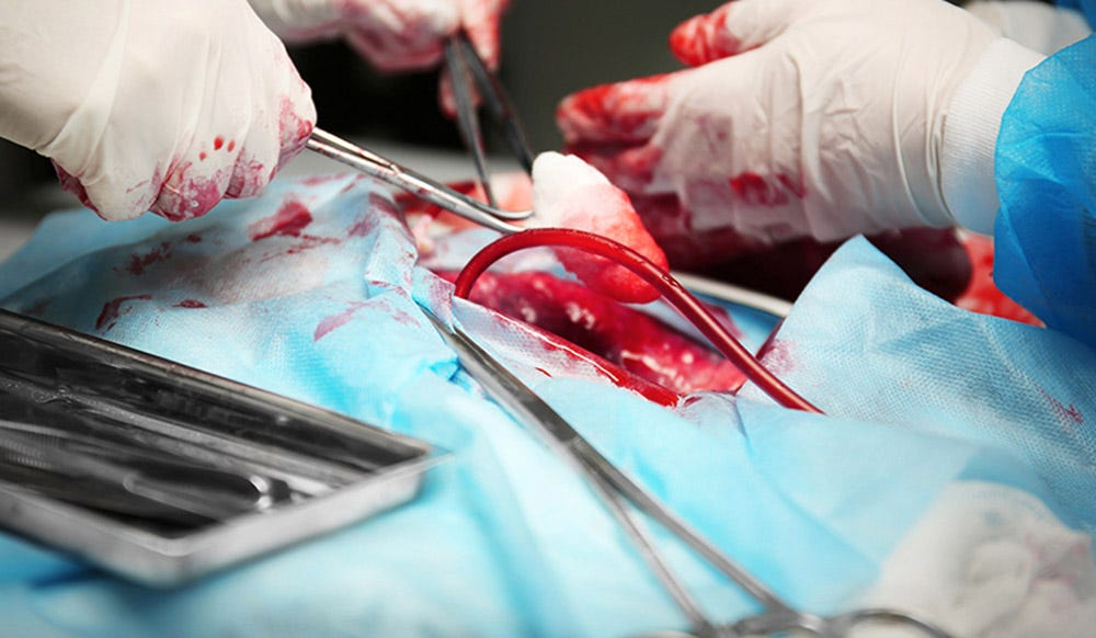 Why We Need To Redesign The System Used To Allocate Organs For Transplants