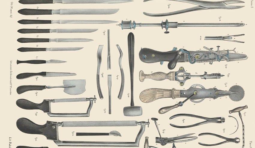 Antique Medical Diagrams Showcase The Horrors Of Victorian-Era Surgery