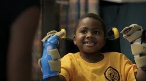 zion-harvey-after-his-bilateral-hand-transplant