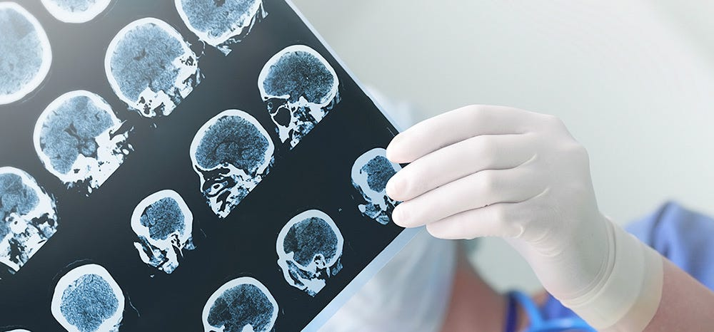 Non-Invasive Brain Surgery Uses Lasers To Give Hope To Epilepsy Patients
