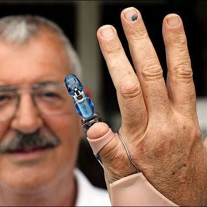 Bionic Fingertip Delivers Sensational Results